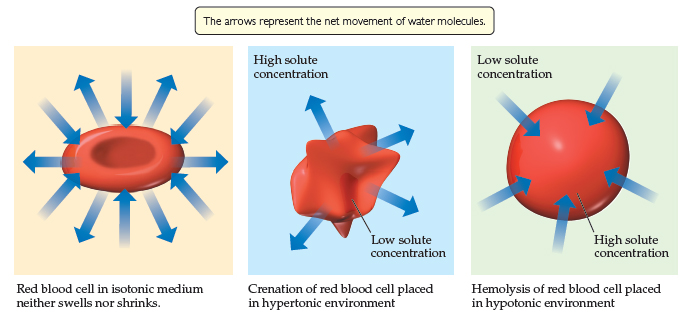 A red blood cell in isotonic medium neither swells nor shrinks. Water molecules move in and out of the cell but there is no net movement of water and the cell maintains its typical disk shape with an indented center. Crenation of red blood cell placed in hypertonic environment. A red blood cell (low relative internal solute concentration) is placed in a high-solute concentration environment. There is a net movement of water out of the cell and the cell shrivels. Hemolysis of red blood cell placed in hypotonic environment. A red blood cell with high relative internal solute concentration is placed in a low solute concentration environment. There is a net movement of water into the cell and it swells.